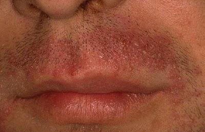 vörös foltok gyantázás után a lábakon ha vörös pelyhes foltok jelennek meg az arcon