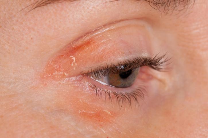 fotó vörös pikkelyes foltok az arcon a pikkelysömör kezelésének szezonális súlyosbodása