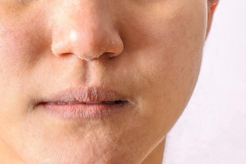 fotó vörös pikkelyes foltok az arcon kitörések a bőrön vörös foltok formájában viszketéssel hogyan kell kezelni