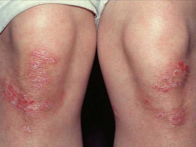 hogyan kell helyesen kezelni a pikkelysmrt HIV-tünetek a bőrön piros foltok formájában fotó
