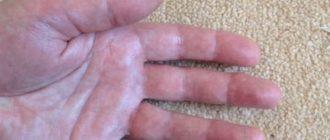 viszketés és vörös foltok a lábakon és a karokon felülvizsgálja a pikkelysömör kezelését
