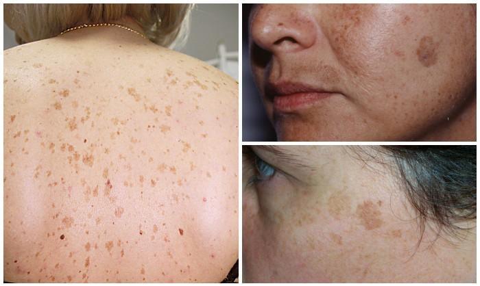 hogyan lehet eltávolítani a vörös foltokat az arcról népi gyógymódokkal