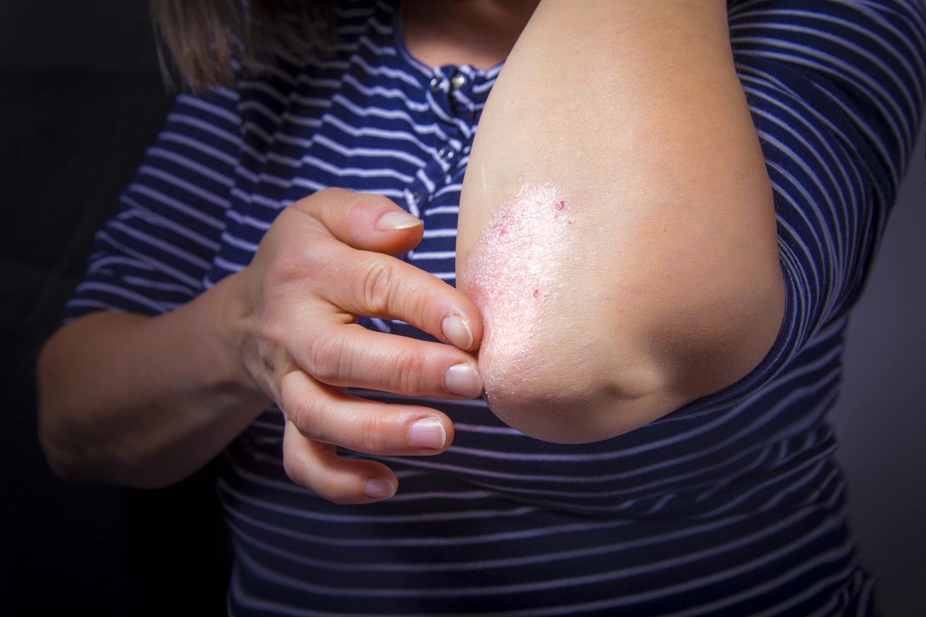 vörös foltok és a lábak bőrének hámlása hogy a foltok viszketnek-e lupus erythematosus-szal