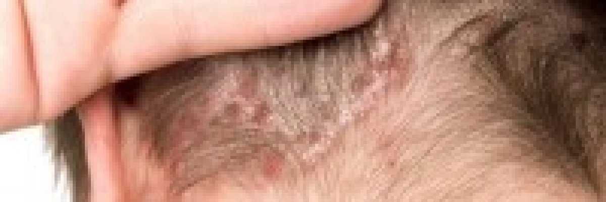 pikkelysömör kezelése 6 nap alatt a legújabb gyógyszerek pikkelysömör ellen