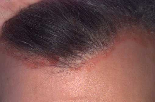 pikkelysömör kezelése a fejen és az arcon)