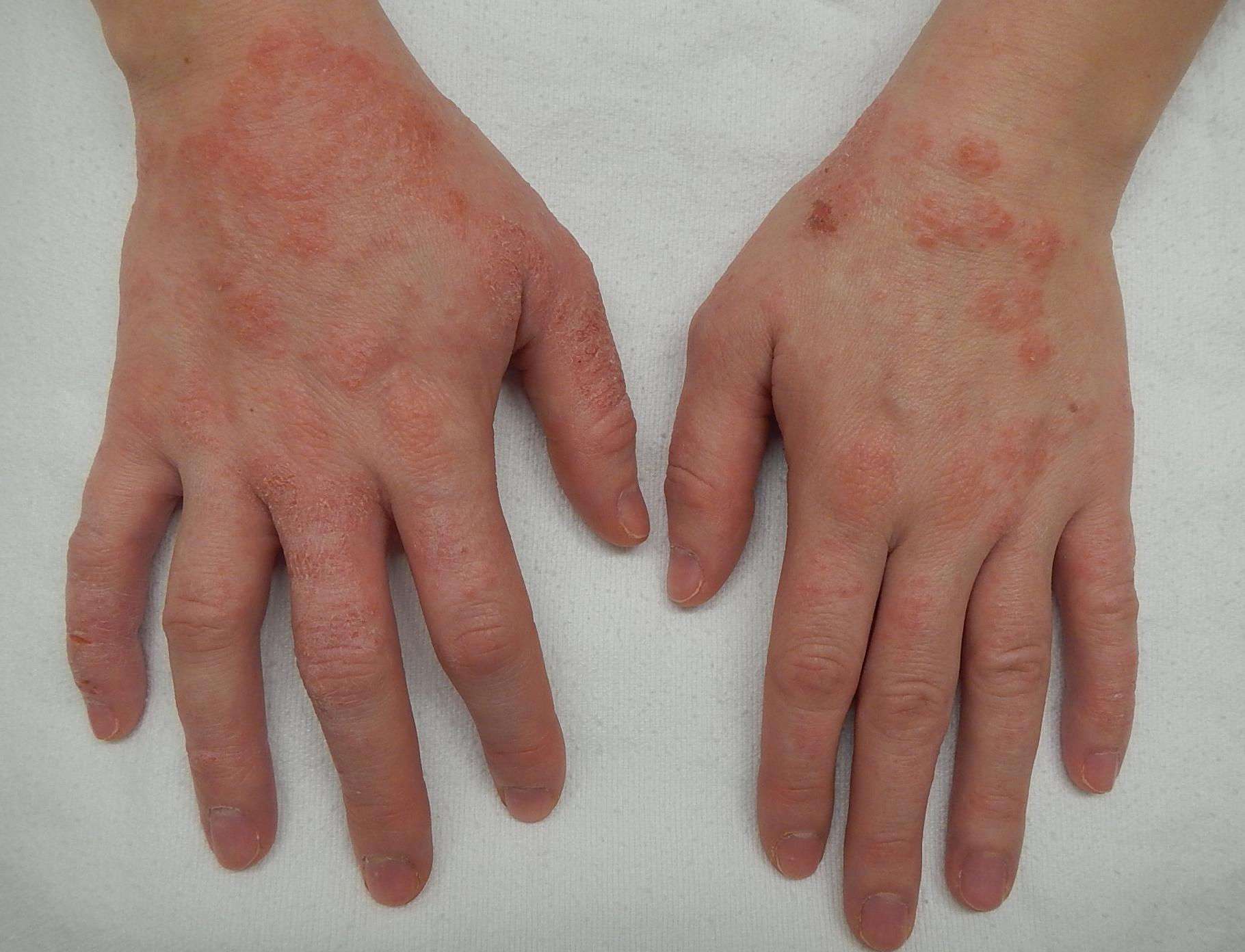 kezek viszketnek és vörös foltok jelennek meg pikkelysömör kezelése a lábakon otthon népi gyógymódokkal