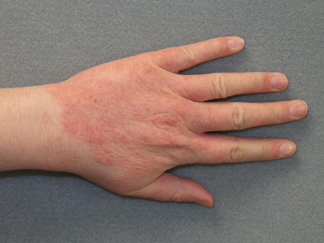 piros folt jelent meg a lábán, lehámozva a fényképet puva terápia pikkelysömör kezelése