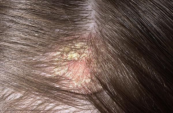 miért vörös foltok a fejbőrön
