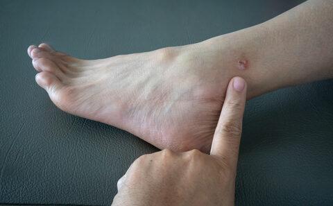 mit kell tennie egy piros folt a lábán)