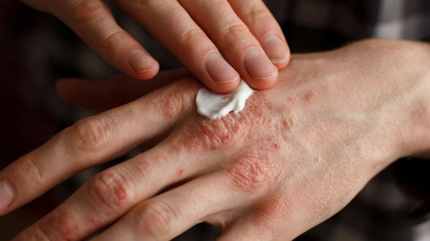 múmia kezeli a pikkelysömör vörös foltok a tojásokon a lábakon