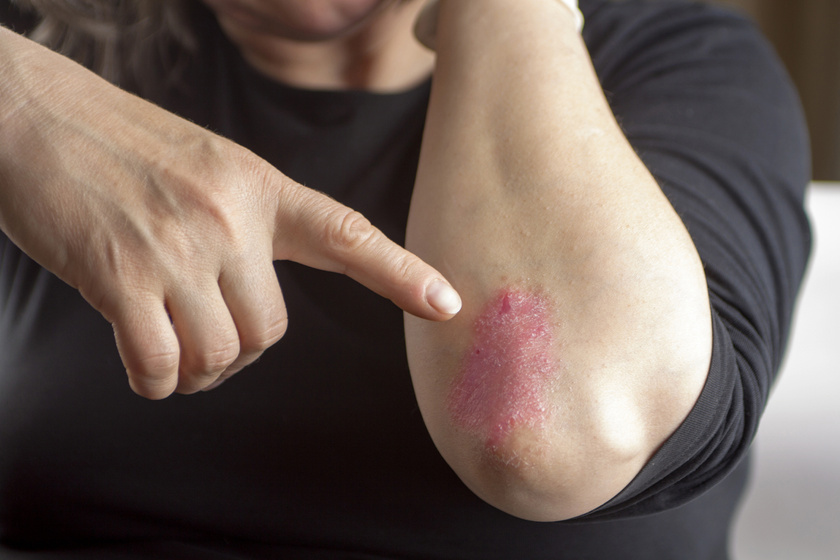 pikkelysömör a könyökön és a térdén népi gyógymódok miért veszélyesek a vörös foltok a lábakon?