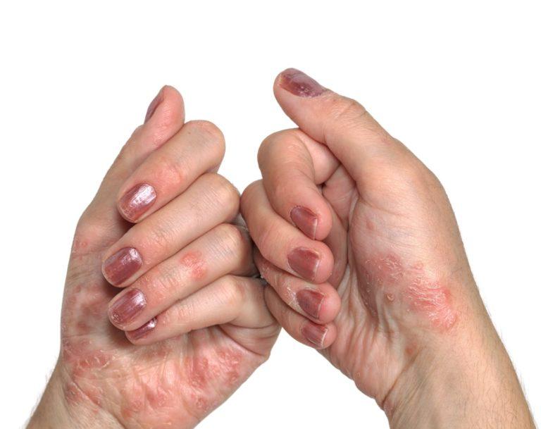 duzzadt vörös foltok viszketés kezelése