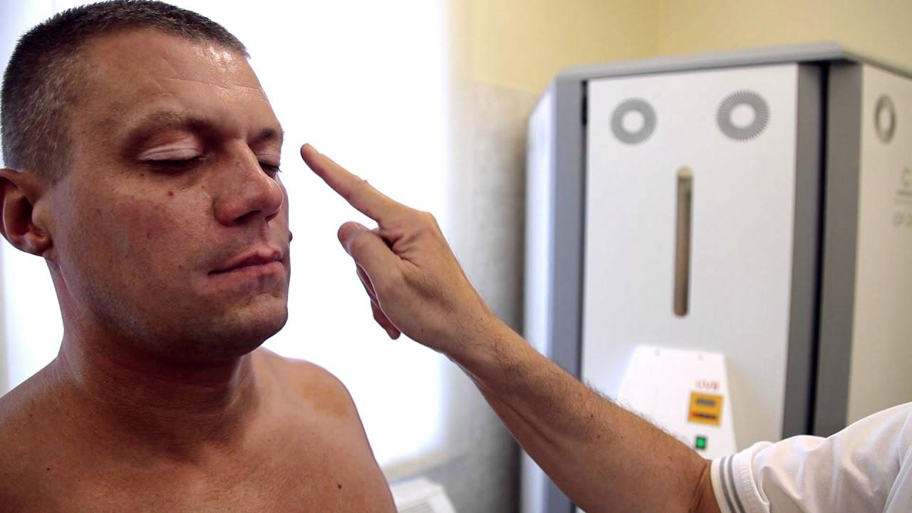 pikkelysömör kezelése UV sugarakkal