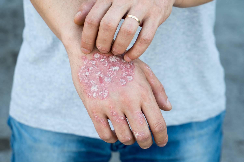 pikkelysömör mit kell tenni, hogyan kell kezelni bőrkiütés vörös foltok formájában felnőtteknél