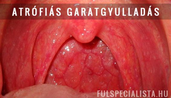 5 betegség, ami fehér foltokat okozhat a mandulákon