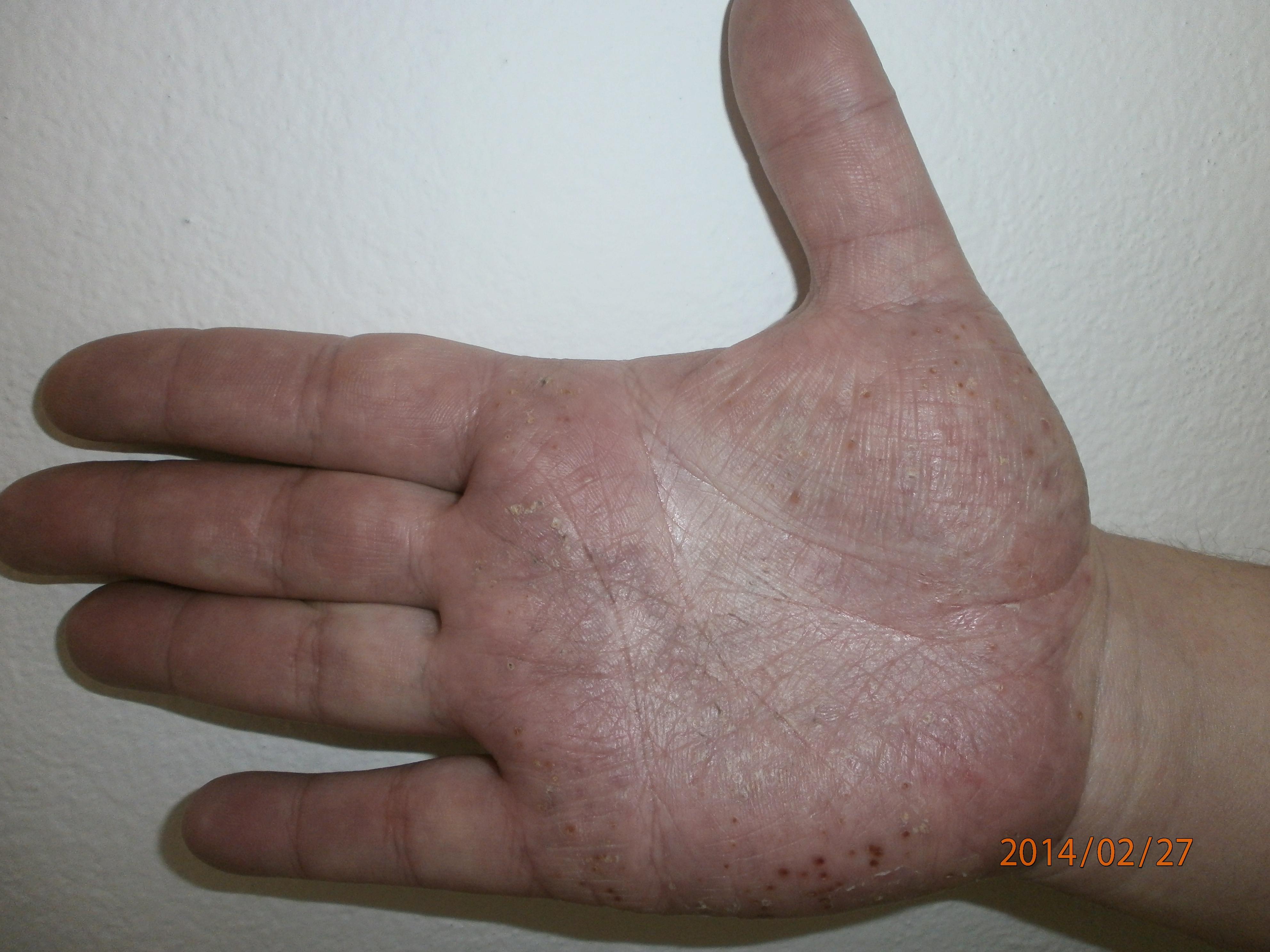Pikkelysömör (Pszoriázis)