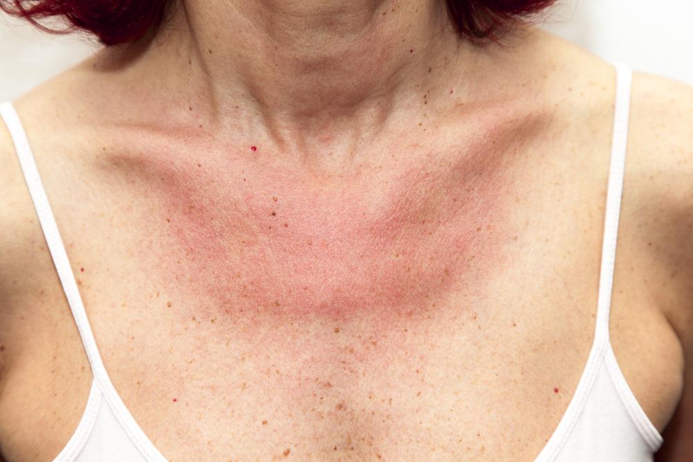vörös folt a testen pattanásos viszketéssel kókuszolaj pikkelysömör kezelésében