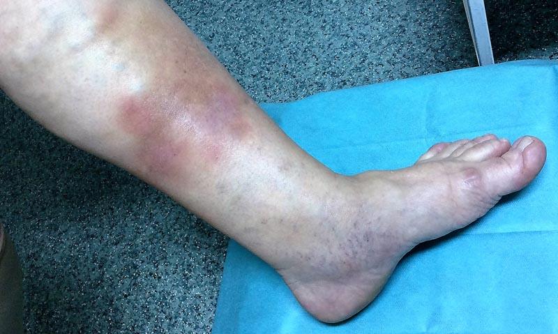 vörös foltok a lábak alsó lábán visszér