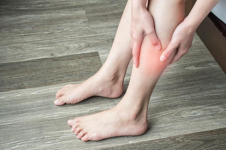 vörös foltok a lábakon az erek közelében bőrsapka krém vélemények a pikkelysömörről