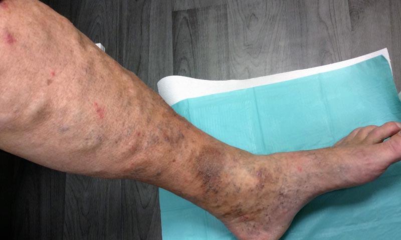 vörös foltok a lábakon cukorbetegségben