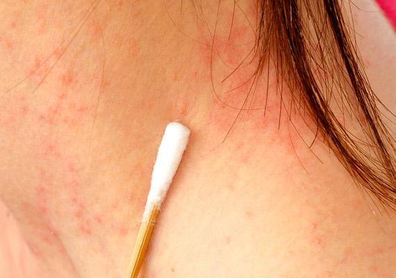 Lappangó betegségeket is jelezhetnek a bőrtünetek, Az arcon nagy vörös foltok pikkelyesek