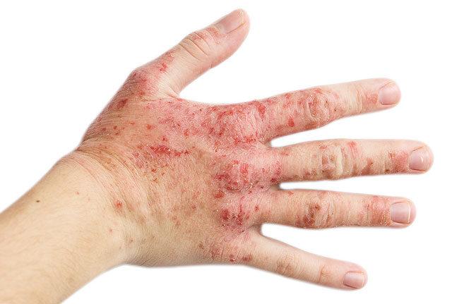 vörös foltok az ujjak között a kezeken viszketnek pikkelysömör kezelése lúggal