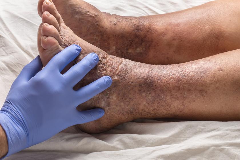 vörös testfolt a testen és viszket vörös foltok piros pontok formájában a lábakon