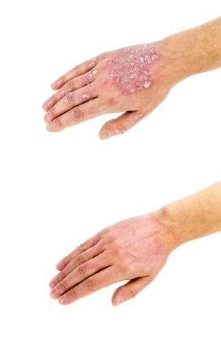 gyógyítható- e a pikkelysömörbetegség vörös foltok jelennek meg a testen viszketnek és fokozódnak