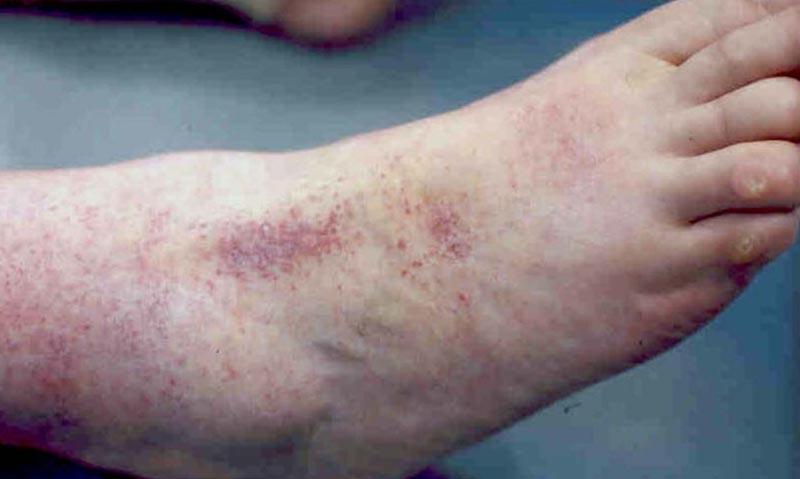 Vörös foltok a cukorbetegek lábán. A cukorbetegség bőrön megjelenő tünetei és következményei
