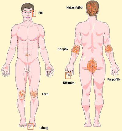 pikkelysömör, aki mit gyógyított vörös foltok a háton és a hason egy felnőtt viszketésben