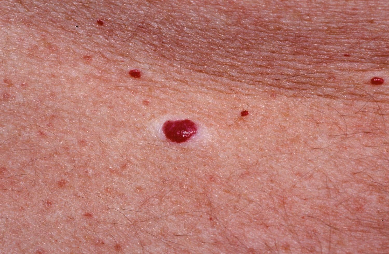 hogyan lehet eltávolítani a vörös foltot a fején fejbőr pikkelysömör gél
