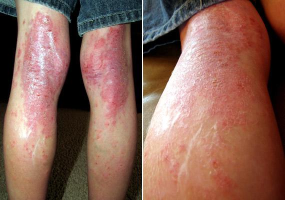 hogyan lehet gyógyítani a pikkelysömör otthon a lábakon
