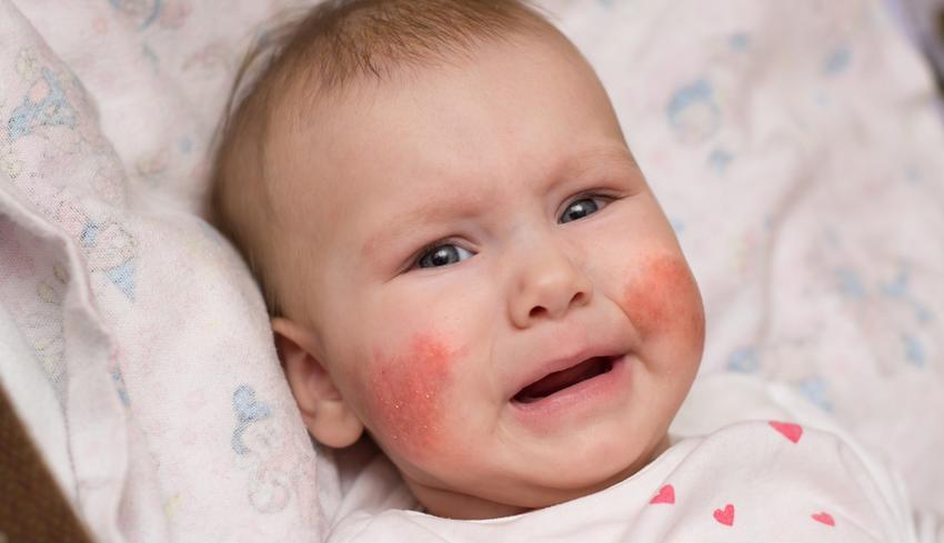 az arc viszket és vörös foltok vannak az arcán