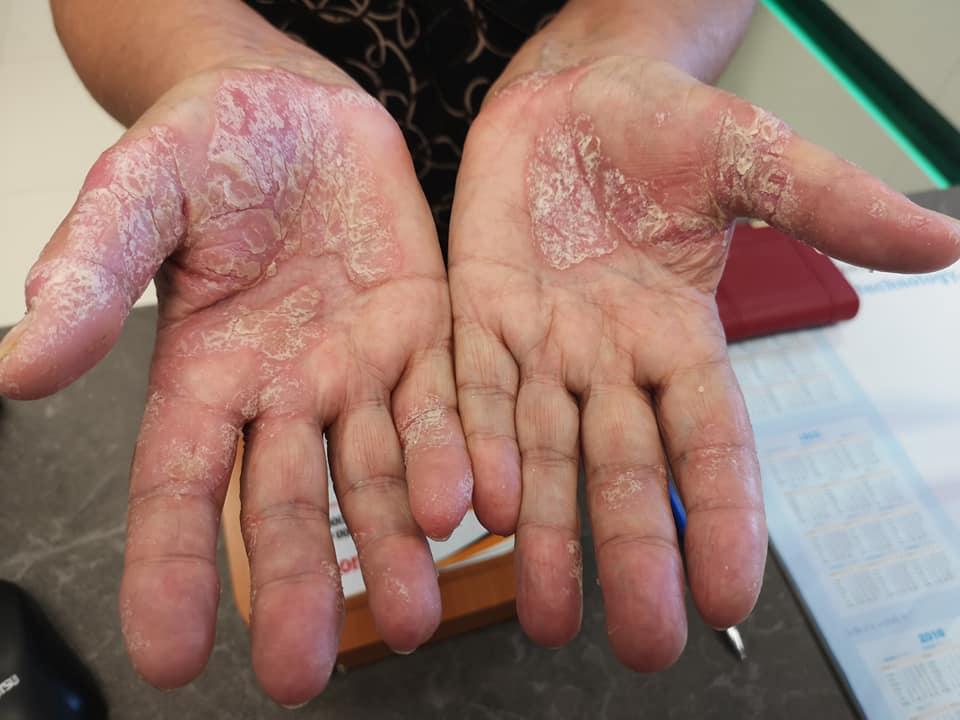 pikkelysömör kezelése ujjakon