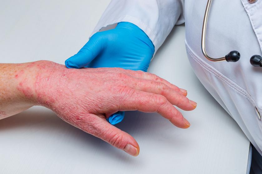 csodakomplexum a pikkelysmr kezelsre arcradír vörös foltokra