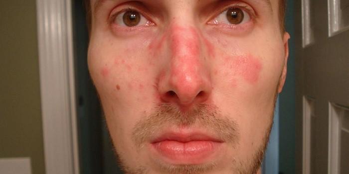 Vörös foltok jelentek meg a férfiak arcán Bőrgomba - Canesten
