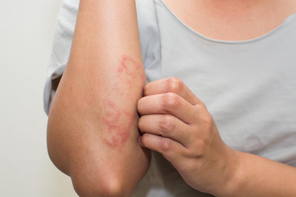pikkelysömör kezelése továbbadódik a lábán vörös foltok fájdalmasak