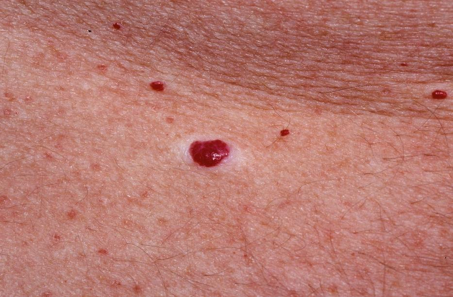 a bőrön a foltok domború vörösek pikkelysömör kezelése bőrsapka kenőcs