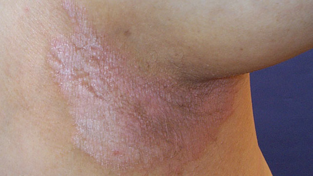 vulvar pikkelysömör kezelése