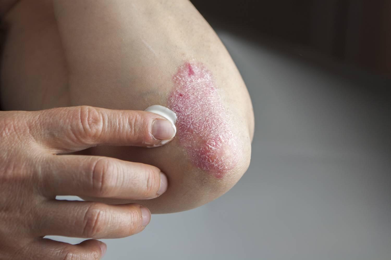 pikkelysömör és ekcéma kezelése népi gyógymódokkal