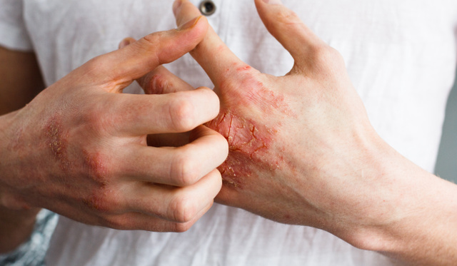 vörös foltok jelennek meg a kezeken a naptól