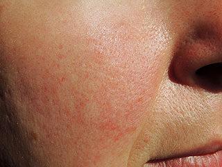 tünet vörös foltok az arc bőrén vörös folt viszket a mell alatt