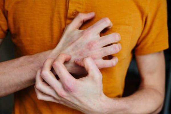 hogyan kezeli az ujjak pikkelysömörét