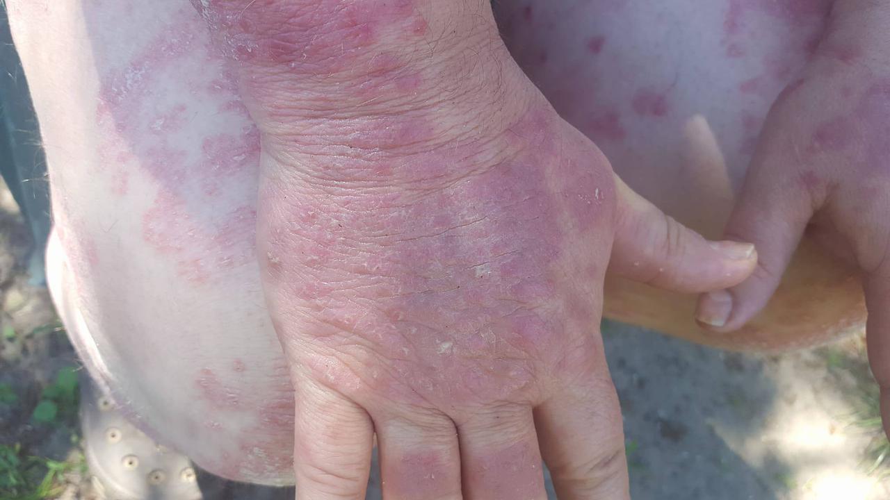 kenőcs pikkelysömör kezelésére kartalin gyógytea pikkelysömör kezelése
