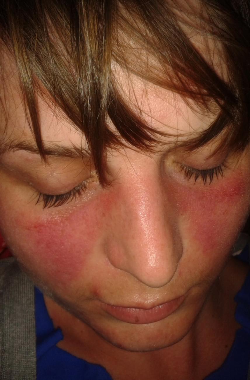 miért borítja az arc bőrét vörös foltok
