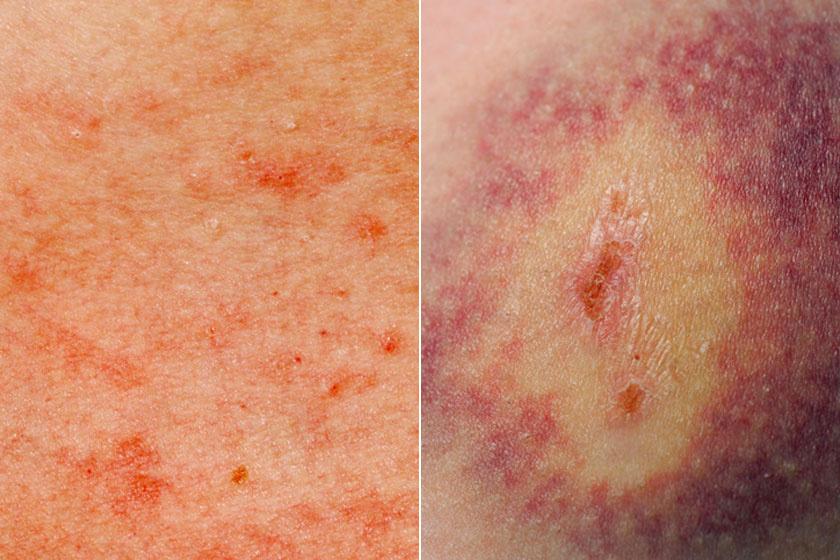 vörös foltok a bőr alatt és fáj