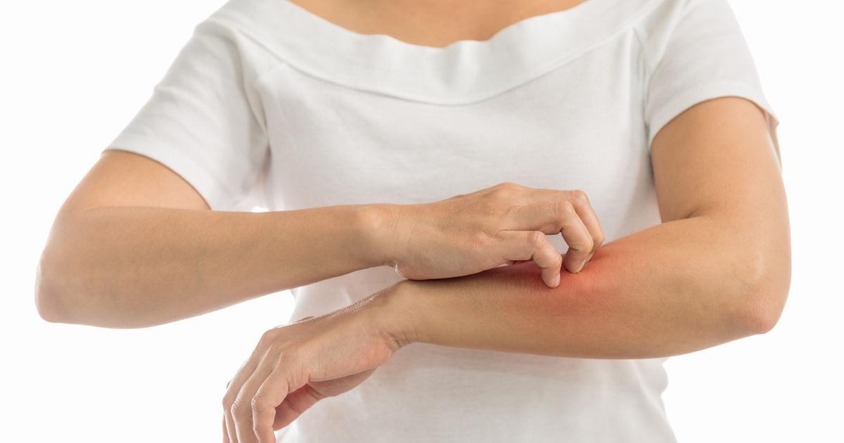 mit jelentenek a kéz piros foltjai vörös foltok jelennek meg a homlokán és lehámoznak