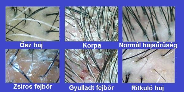 pikkelysömör kezelés előtt és után képek vörös foltok a lábak között a bőrön