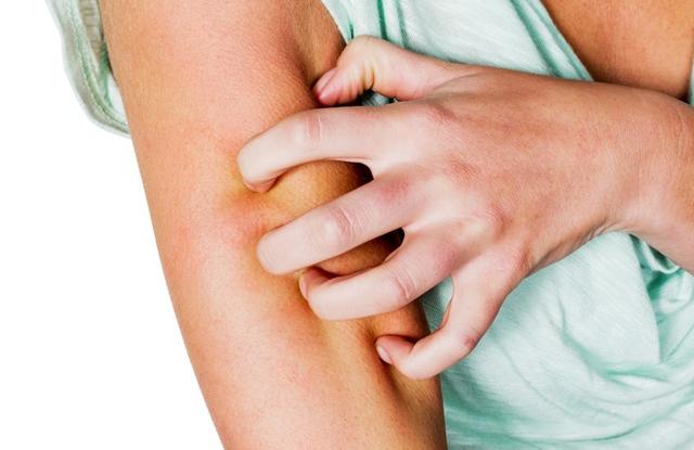 Bőrbetegséget okozhat, ha megeszed: képeken 6 étel, amivel nagyon vigyázz! - Egészség   Femina