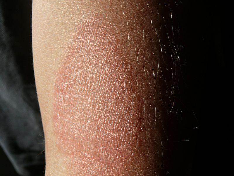 piros száraz foltok a kezeken viszketnek vörös foltok jelentek meg a tenyéren és a fénykép leválik